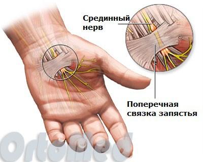 Синдром карпального канала